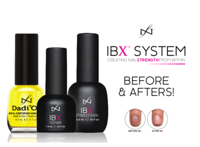 Famous Names   IBX Systems Before & Afters